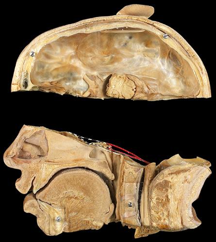 anatomionline dk